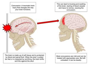 Graphic courtesy of Medicalnewstoday.com